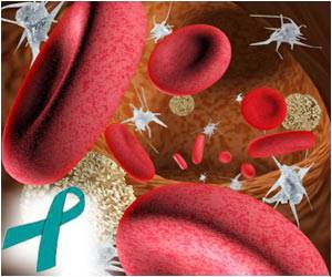 Relation Between Platelets and Ovarian Cancer