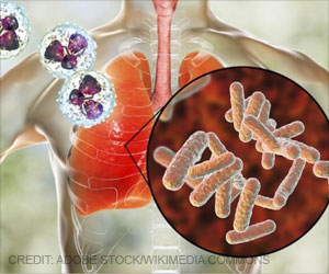 Antimicrobial Therapy Helps to Prevent Sepsis in Pneumonia Patients