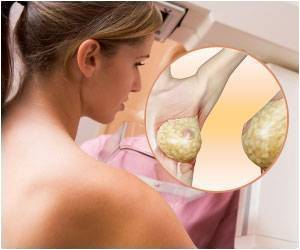 Portable Radio Frequency Breast Cancer Detector - A Major Breakthrough