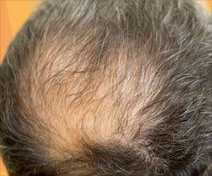 Novel Gene Responsible for Rare Form of Hair Loss Identified