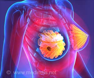 New 'smart Drug' for Metastatic Triple-negative Breast Cancer
