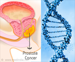 Staging of Prostate Cancer can be Diagnosed With a New Technique