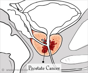 Personalized Treatment Could Have Better Outcome in Prostate Cancer
