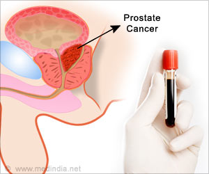 Two Genes Work Together to Drive Prostate Cancer