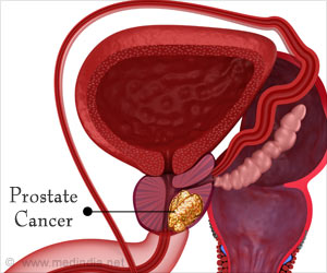 Active Surveillance for Prostate Cancer may Have Risk of Metastases
