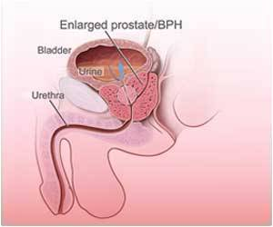 Prostate Cancer Rates Set to Treble: Report