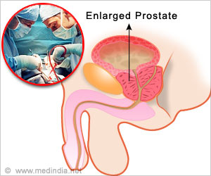 Enlarged Prostate May Not Need Surgery