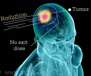 NCI in Haryana Will Soon Offer Proton Therapy for Cancer