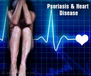 Treating Psoriasis With Biologic Drugs Reduces Heart Disease Risk