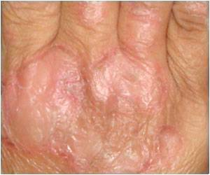 More Than 5 Percent of Pakistanis Suffering From Psoriasis