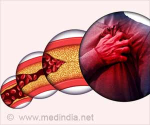 Psoriasis Therapy can Reduce Coronary Inflammation