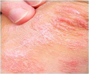 Kids With Psoriasis Likely to be Overweight: Study