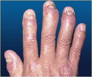 Psoriasis Increases Risk of Stroke