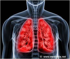 Bigger Lungs may be Better for Transplants: Study