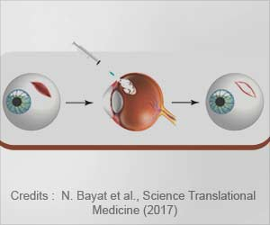 Temperature-sensitive Hydrogel Developed to Fix Eye Injuries