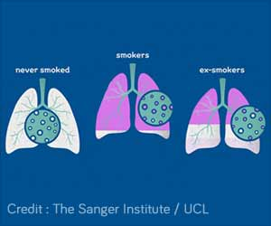 Quitting Smoking can Reduce Risk of Lung Cancer