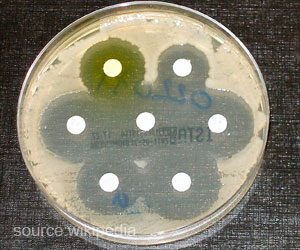 New Enzyme Identified Behind Bacteria's Antibiotic Resistance