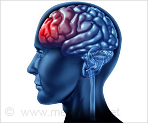 Microbleeds After Head Injury can Worsen Outcomes: Study