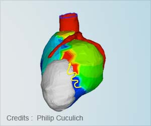 Noninvasive Radiation Therapy to Treat Life-Threatening Heart Rhythm