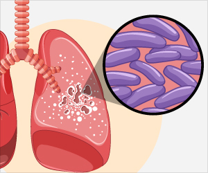 New Rapid Diagnosis Test to Identify Tuberculosis Early