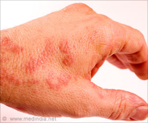 Hard Water Can Damage Skin, Cause Eczema