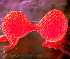 India should Prioritize Cervical Cancer Screening
