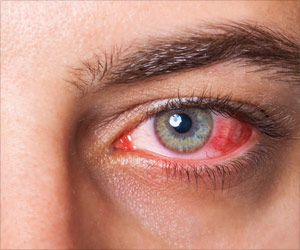 Adalimumab Proves to be an Effective Treatment for Eye Inflammation