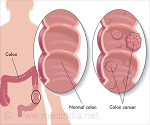 Colorectal Cancer Mortality Rates Vary With Race