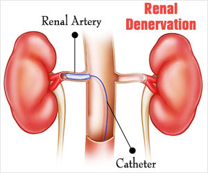Renal Denervation Helps To Bring Drug-Resistant Hypertension Under Control