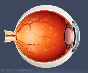 New Protein Gives Ray of Hope for Diabetic Retinopathy Patients!