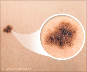 Prevent Skin Cancer with Beneficial Bacteria