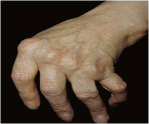 Study Finds Patients With Rheumatoid Arthritis at Increased Risk for Blood Clots
