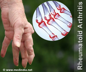 Serotonin Levels in Body Implicate Rheumatoid Arthritis