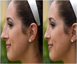 Aesthetic Nasal Tip Projection, Rotation in White Women Examined