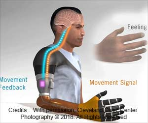 New Technology Restores Movement and Sensation in Upper Limb Amputation Patients