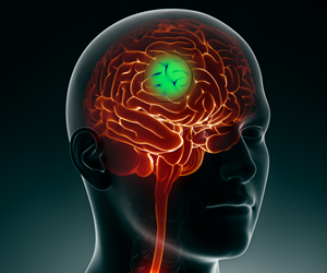 Brain Tumor Growth Could be Slowed Down Using Non-invasive Electrical Stimulation
