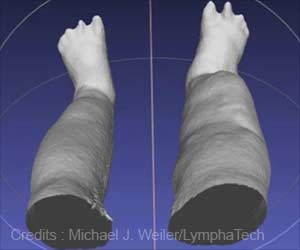 Portable 3-D Scanner can Measure Swollen Legs Faster