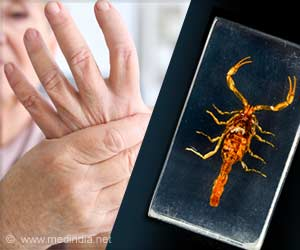 Scorpion Venom Reduces Severity of Rheumatoid Arthritis