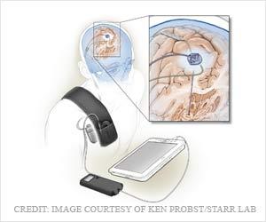 New Adaptive Deep Brain Stimulation for Parkinson's Disease