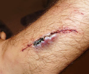 Electroactive Bandage for Wound Healing Developed
