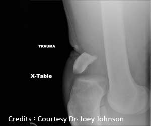 Obesity Increases Risk of Knee Dislocation