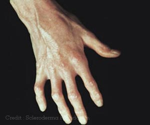 Shock-wave Therapy can Treat Finger Ulcers in Scleroderma Patients