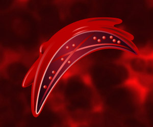 Curing Sickle Cell Patients With 'incompatible' Donor Stem Cells