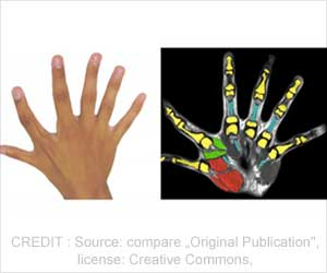 New Insights into Polydactyly (Six Fingers)