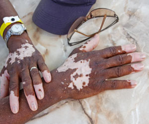 Vitiligo Patients Find New Hope in Skin Transplant