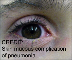 Painful Skin and Mucous Membrane Lesions may be Symptoms of Pneumonia