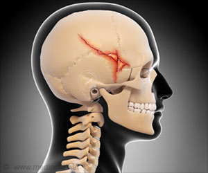 Head Fracture to be Predicted With a Biomarker in Blood
