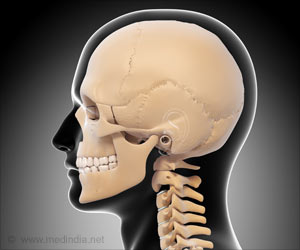 Breakthrough Surgery Results in 75 Per Cent Skull Replacement by 3D-printed Implant