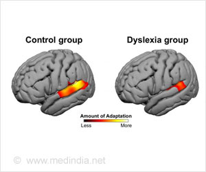Brain Adaptation Slower in Dyslexia