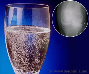 Soda May Worsen Knee Osteoarthritis in Men
